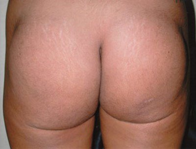 secondary buttock augmentation ( 300 ml round implants) before / 3 months after