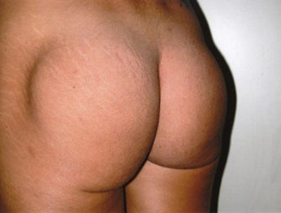 secondary buttock augmentation 300 ml