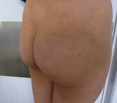 Buttock Implants Before and After 360 ml implants (before)