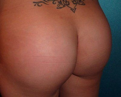 Patient after buttock implants