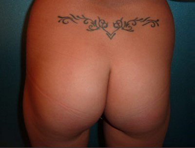 Patient before buttock implants