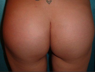 After Buttock Implant