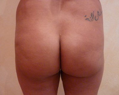 Patient Photo- Before 300ml Buttock Implants