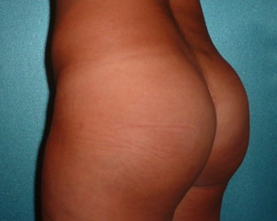 Before and After Buttock Implants - Patient Photo After 300ml Buttock Implants