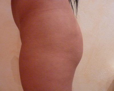 Before and After Buttock Implants - Patient Photo Before 300ml Implants Side Profile