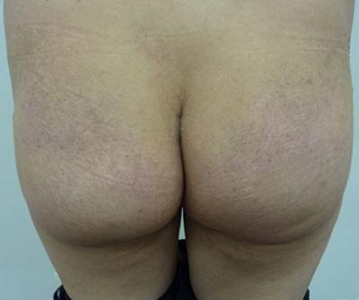 Patient Before 360 ml Buttock Implants