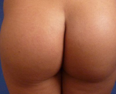 300 ml round buttock implants before and after photos