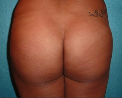 Photo of a patient after buttock implants